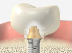 人工歯の作製と装着