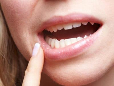 Frau mit Schmerzen am Zahnfleisch hält Finger an den Mund